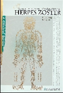 Picture of ACUPUNCTURE AND MOXIBUSTION FOR HERPES ZOSTER